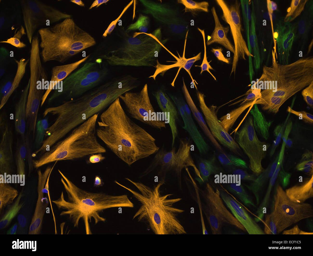 Las células humanas progenitoras neurales fueron aislados bajo condiciones de cultivo selectivo en el desarrollo del cerebro humano y dirigido pasante Foto de stock