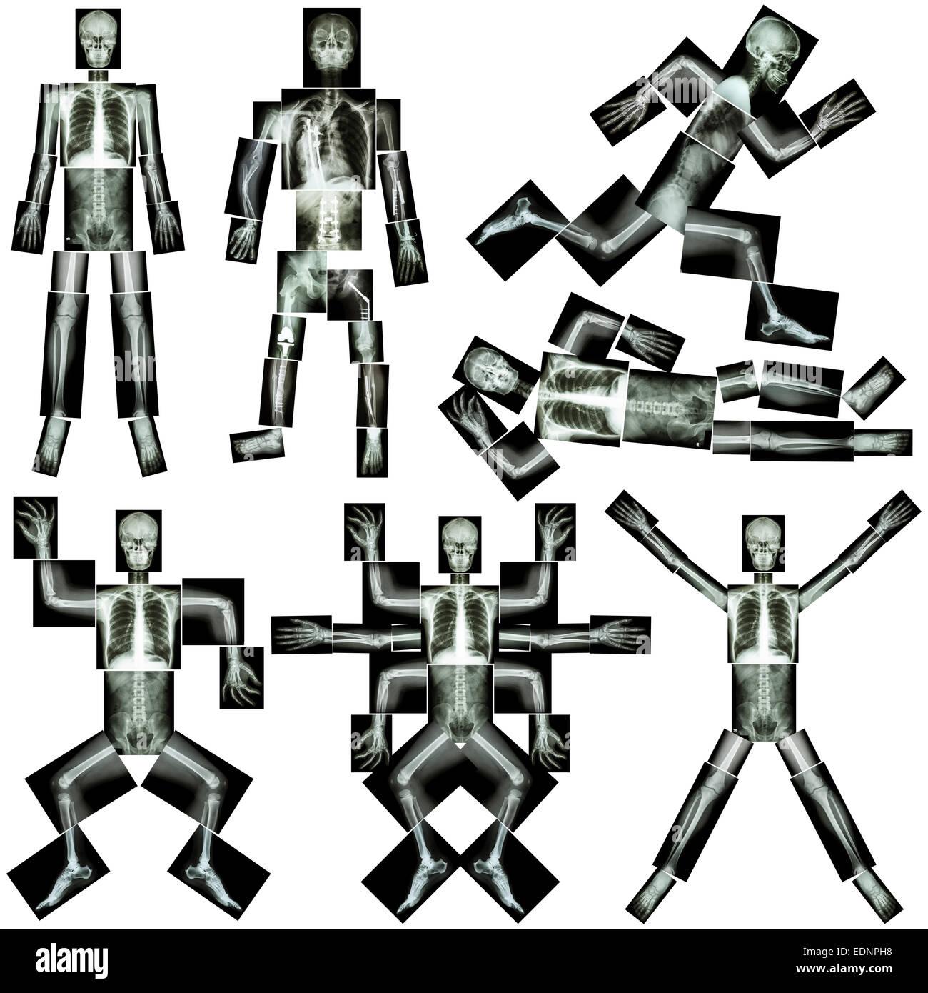 Colección de esqueleto humano (rayos X todo el cuerpo : cráneo la ...