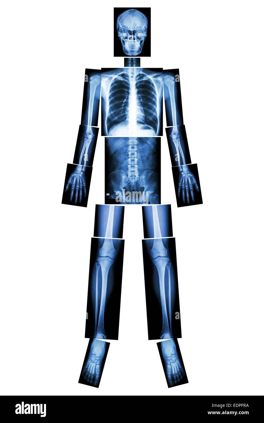 Posición anatómica. (Rayos X todo el cuerpo: cabeza, cuello, tórax ...