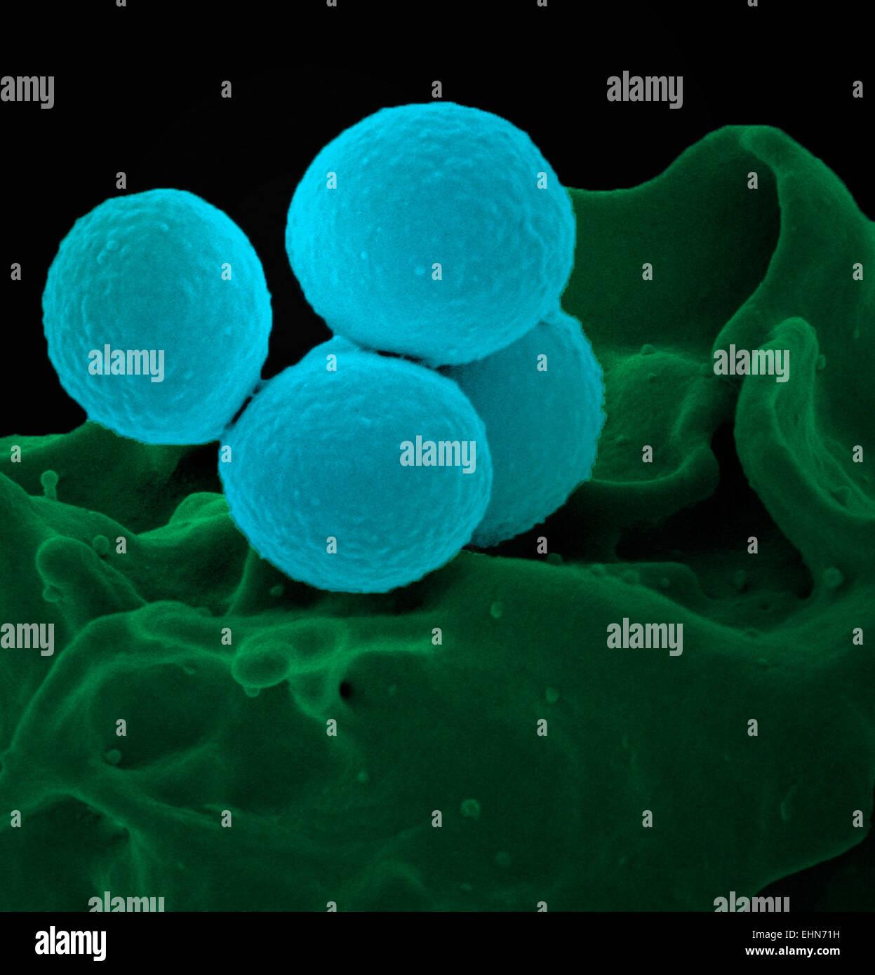 Color análisis micrografía de electrones (SEM) de Staphylococcus aureus meticilino-resistente (SAMR) bacterias. Foto de stock