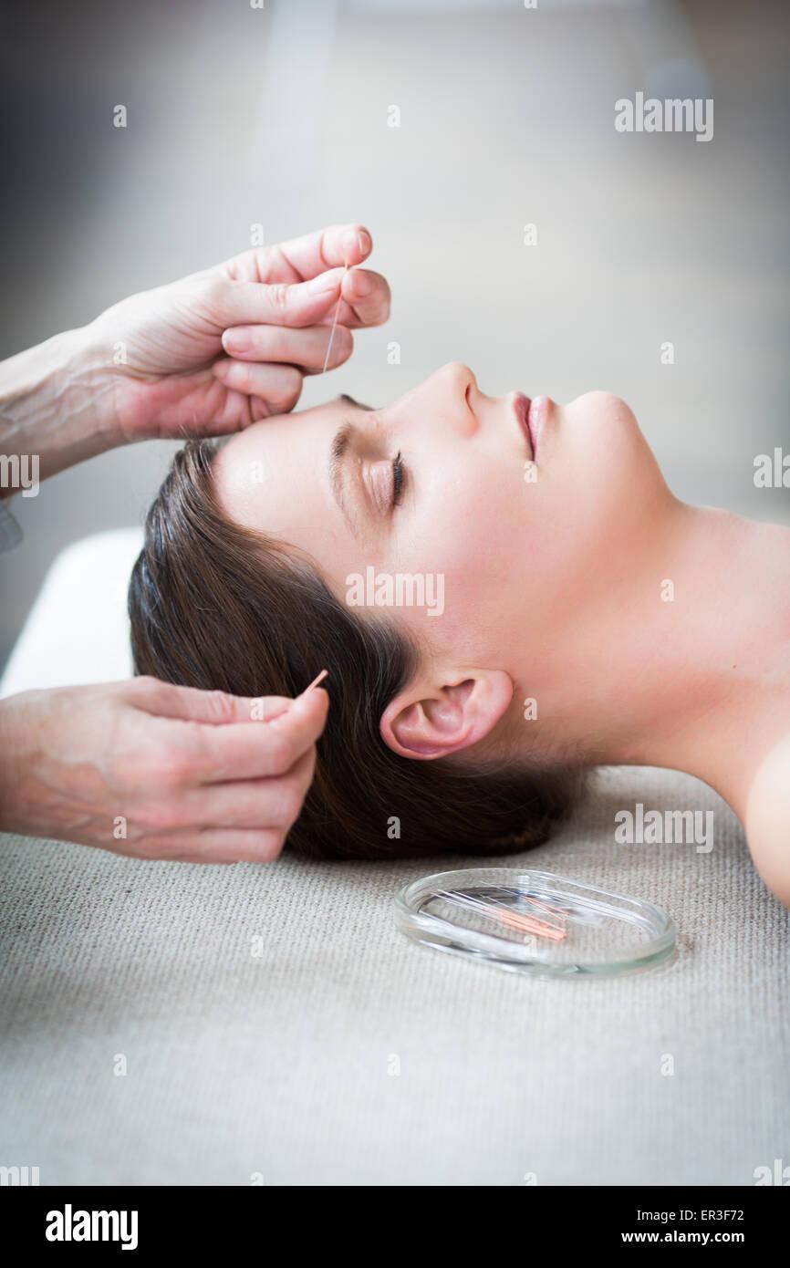 Mujer recibiendo acupuntura. Imagen De Stock