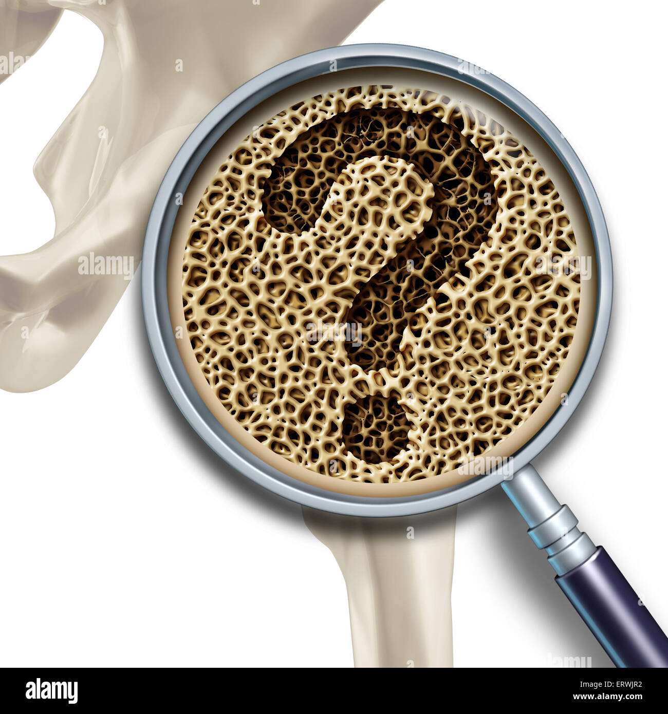 Preguntas de salud médica de hueso y osteoporosis ilustración ...