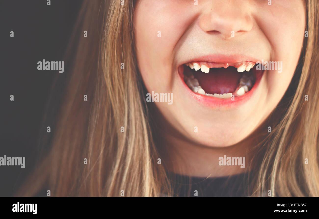 Close-up de una laguna chica dentada riendo Imagen De Stock