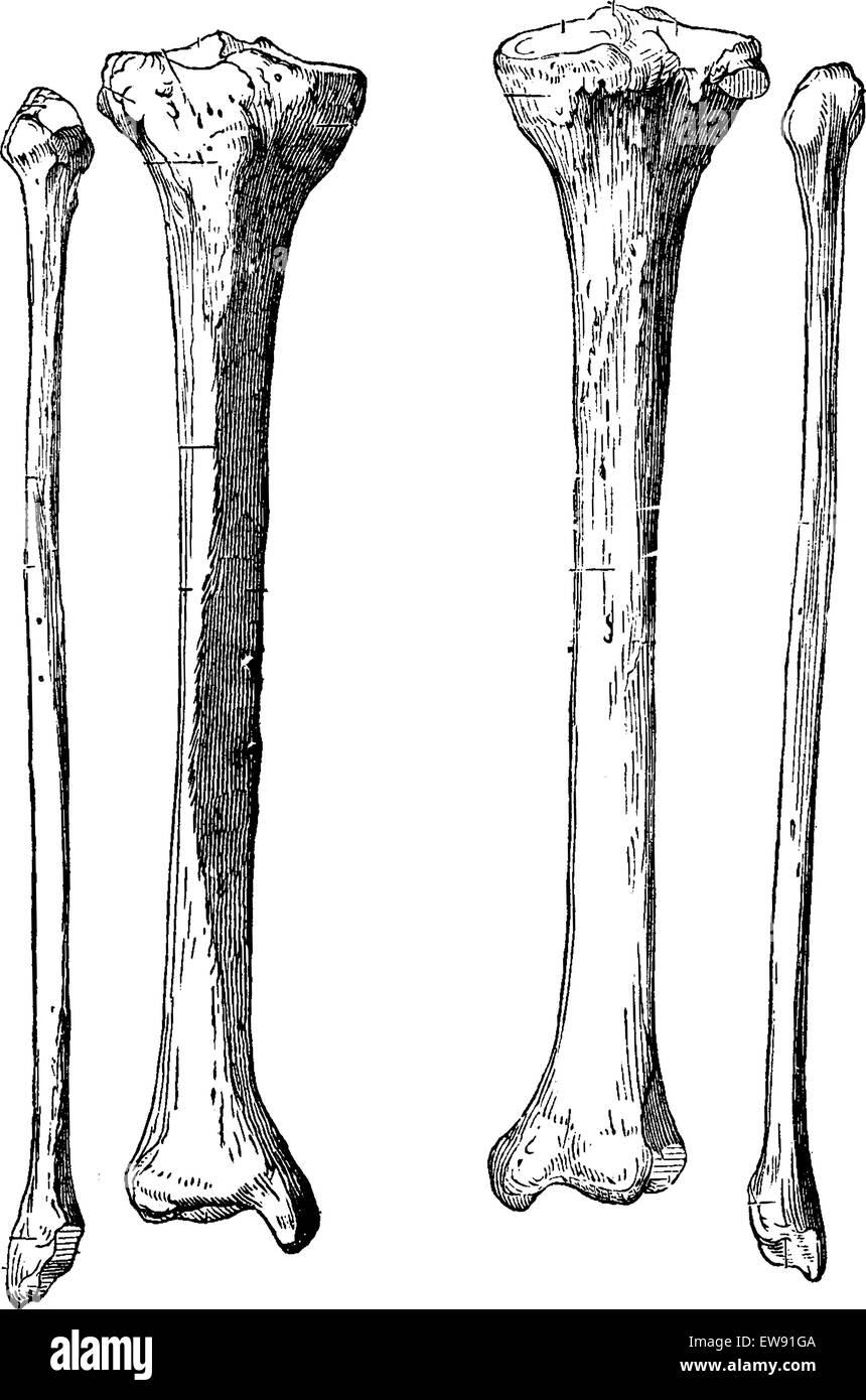 Los huesos de la pierna, la tibia y el peroné, vintage ilustración ...