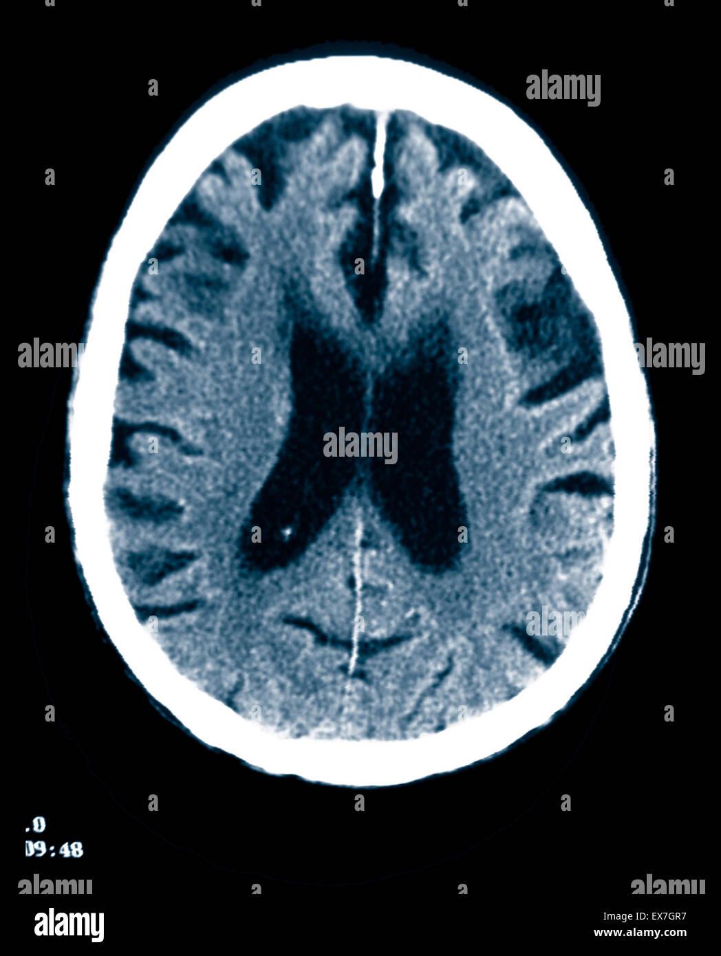Tomografía computarizada de un hombre de 84 años de edad con enfermedad de Alzheimer. CT muestra atrofia cerebral. Foto de stock