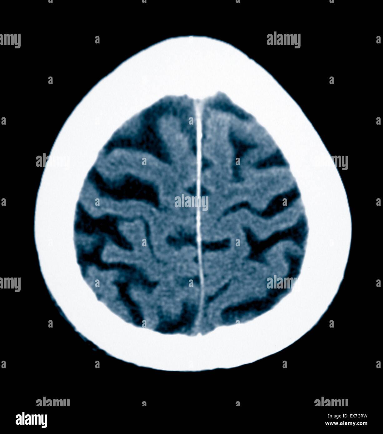 Tomografía computarizada de un hombre de 84 años de edad con enfermedad de Alzheimer. CT muestra atrofia Imagen De Stock