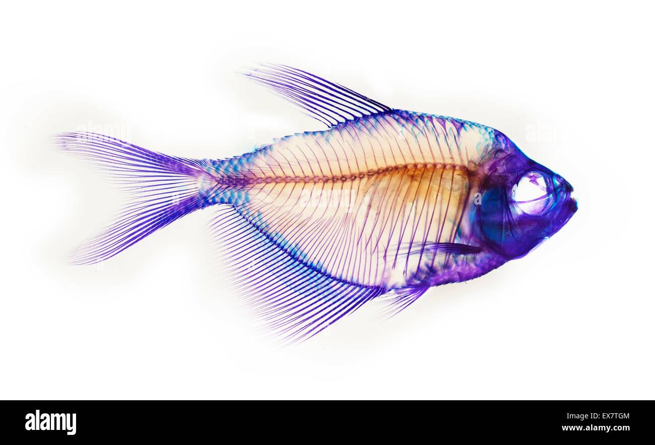 Anatomía del esqueleto de pescado Foto & Imagen De Stock: 84995476 ...