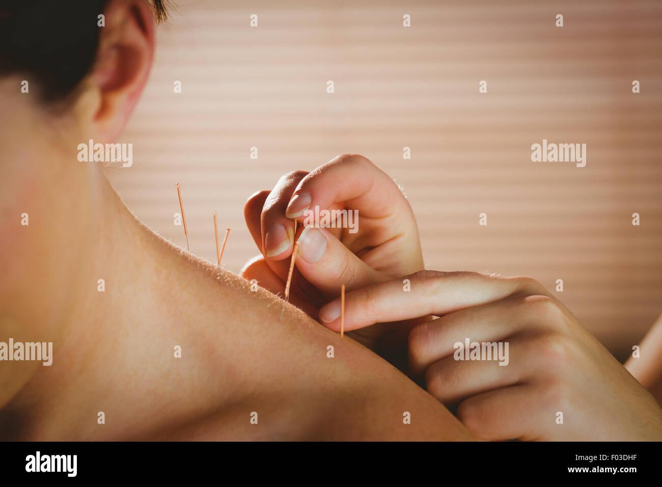 Mujer joven recibiendo tratamiento acupuntura Imagen De Stock