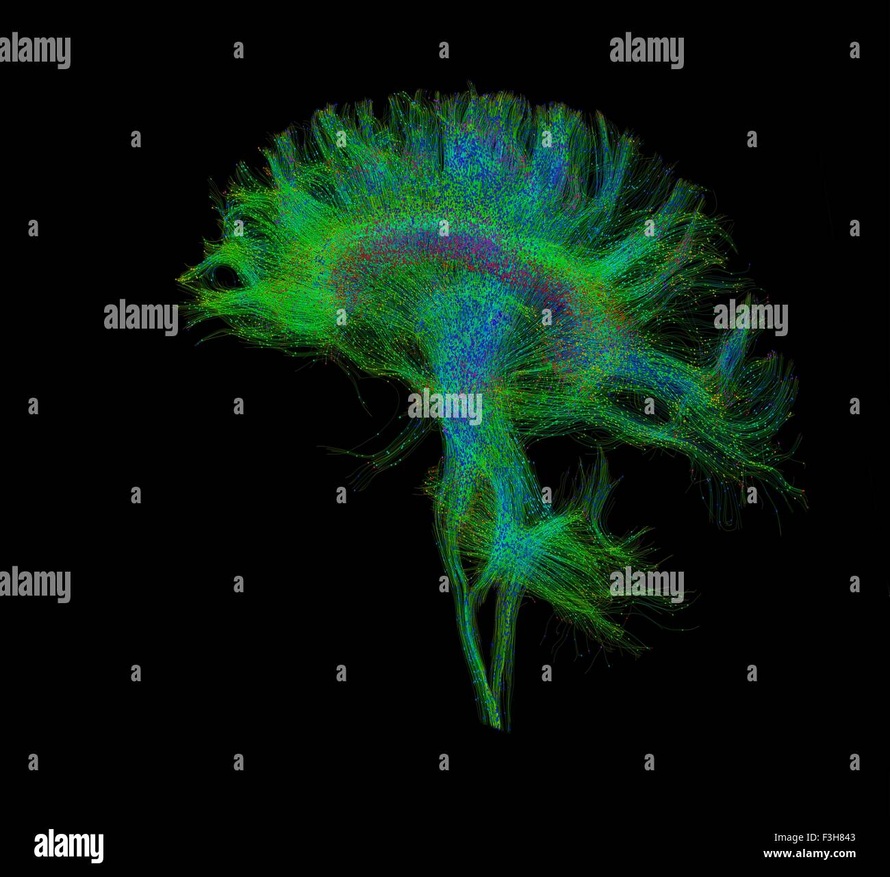 Resonancia magnética de difusión, también se conoce como imágenes de tensor de difusión, Imagen De Stock
