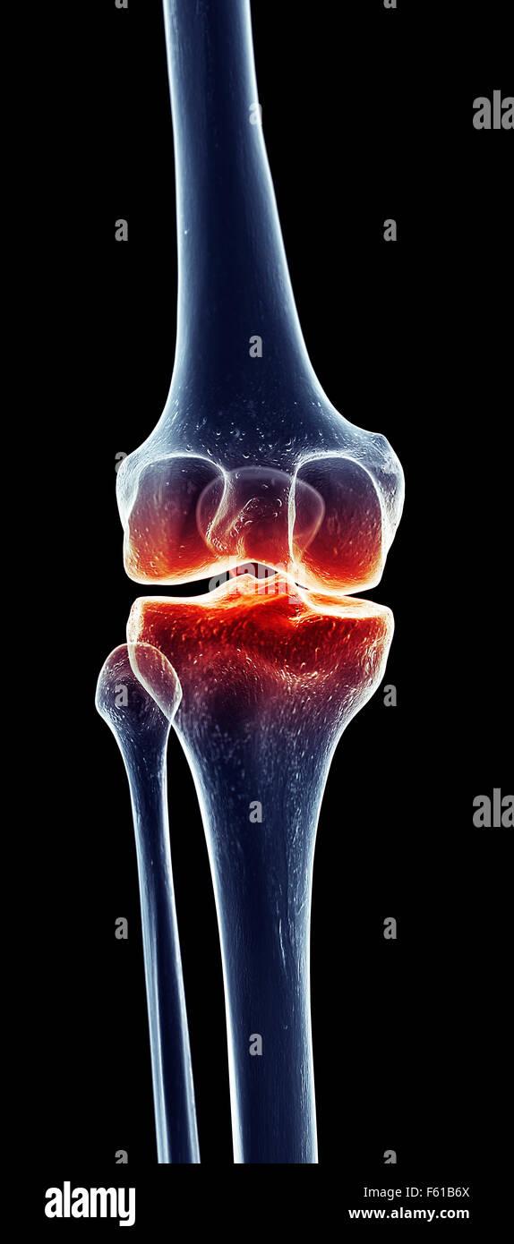 Anatomía artrosis huesos de la pierna de rodilla esqueleto humano ...
