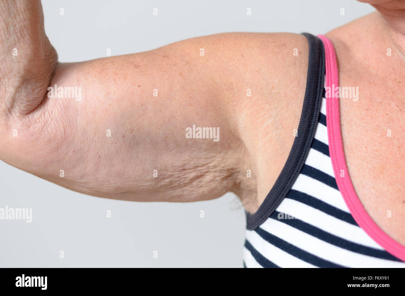 Cerrar los músculos del brazo y axilas de una mujer de mediana edad ...