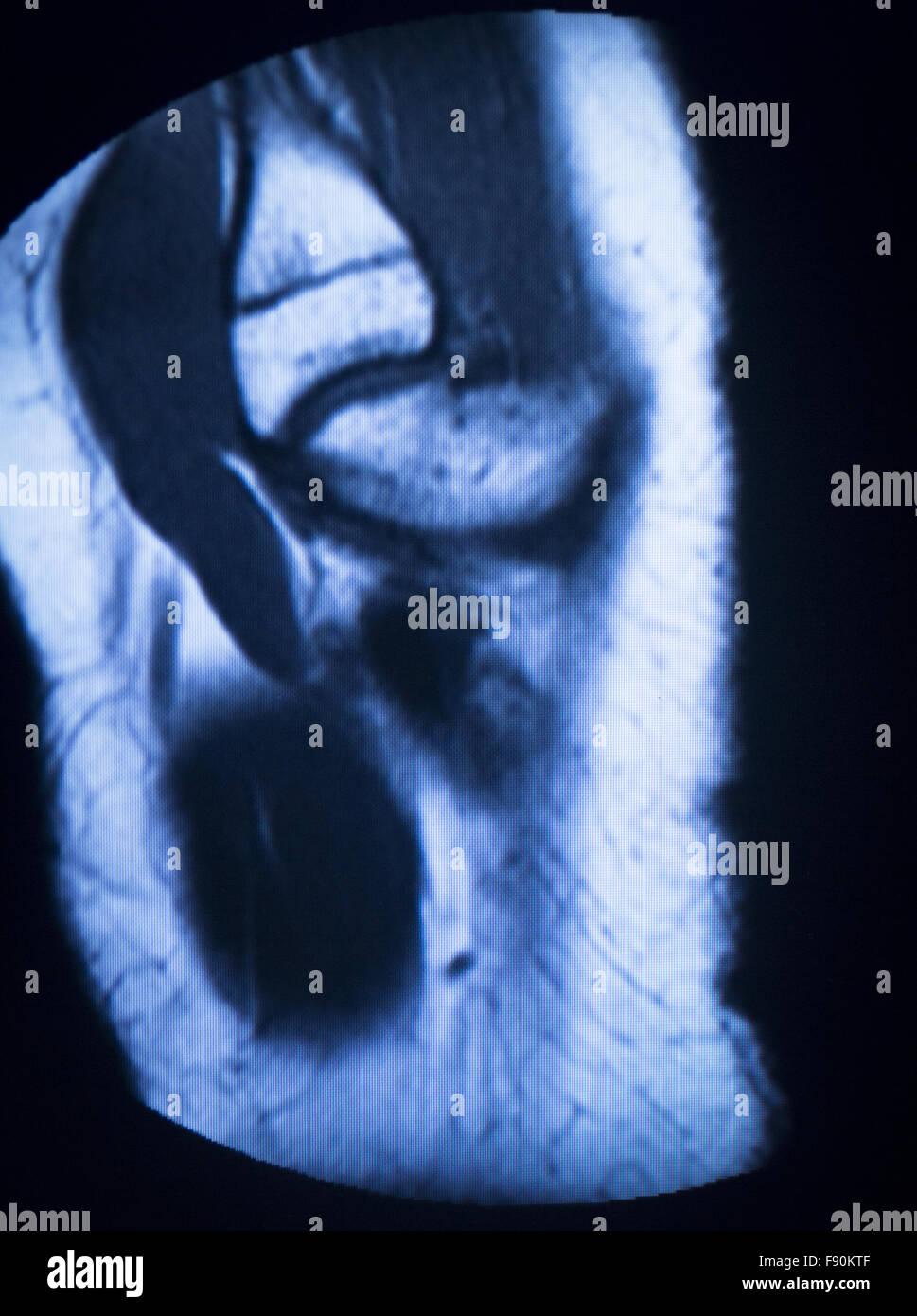 Resonancia magnética MRI exploración médica mostrando los resultados ...
