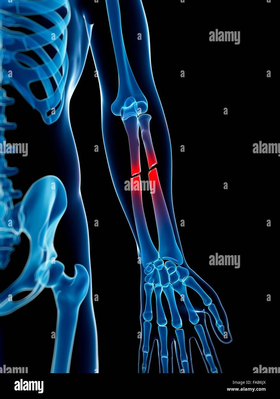 Perfecto Inferiores Huesos Del Brazo Galería - Imágenes de Anatomía ...
