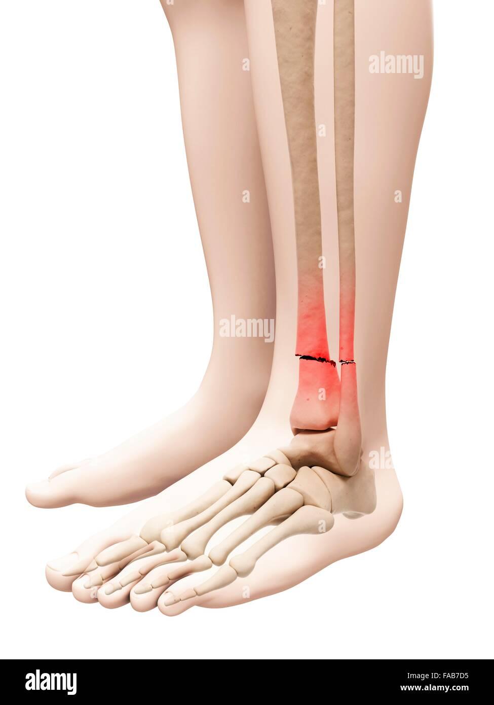 Rotura de los huesos de la pierna inferior, equipo de ilustración ...