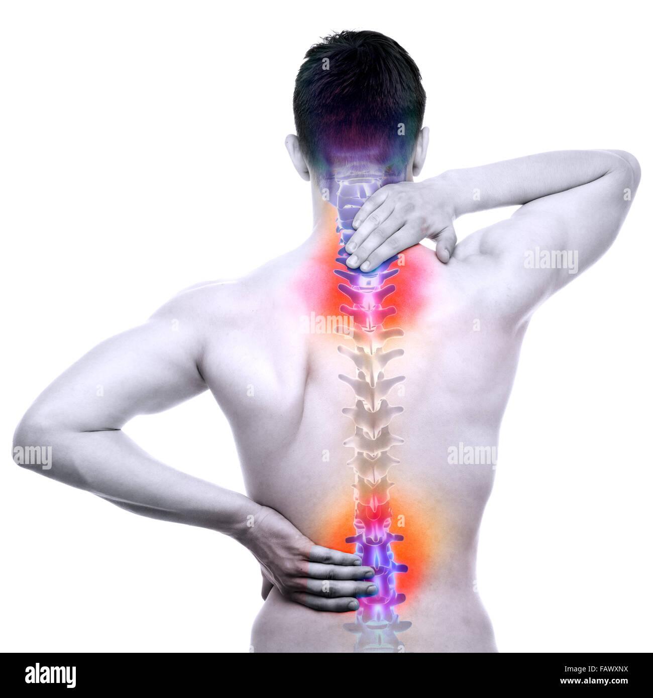 Columna vertebral dolor - Macho herido Backbone aislado en blanco - Concepto de anatomía REAL Imagen De Stock