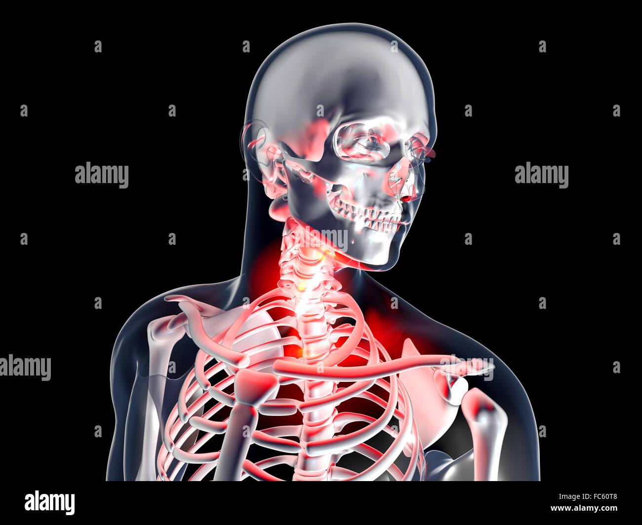 Dolor de garganta - Anatomía Foto & Imagen De Stock: 93560104 - Alamy