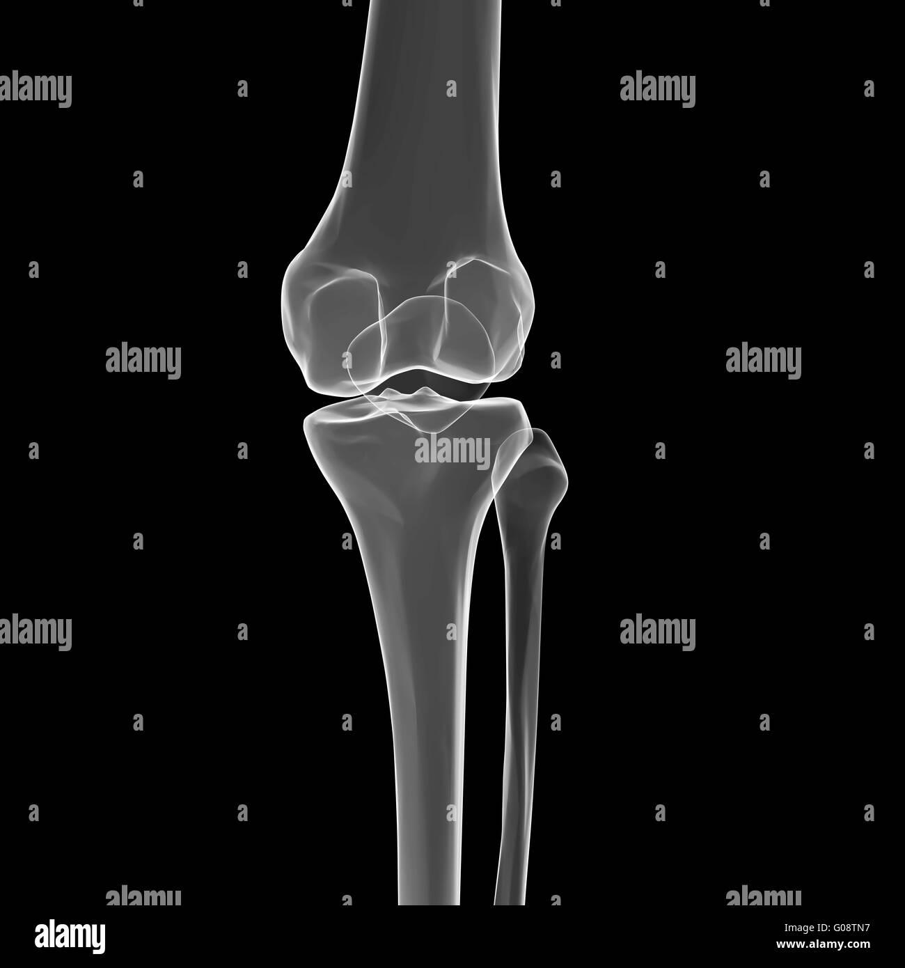 Fibula Bone Imágenes De Stock & Fibula Bone Fotos De Stock - Alamy