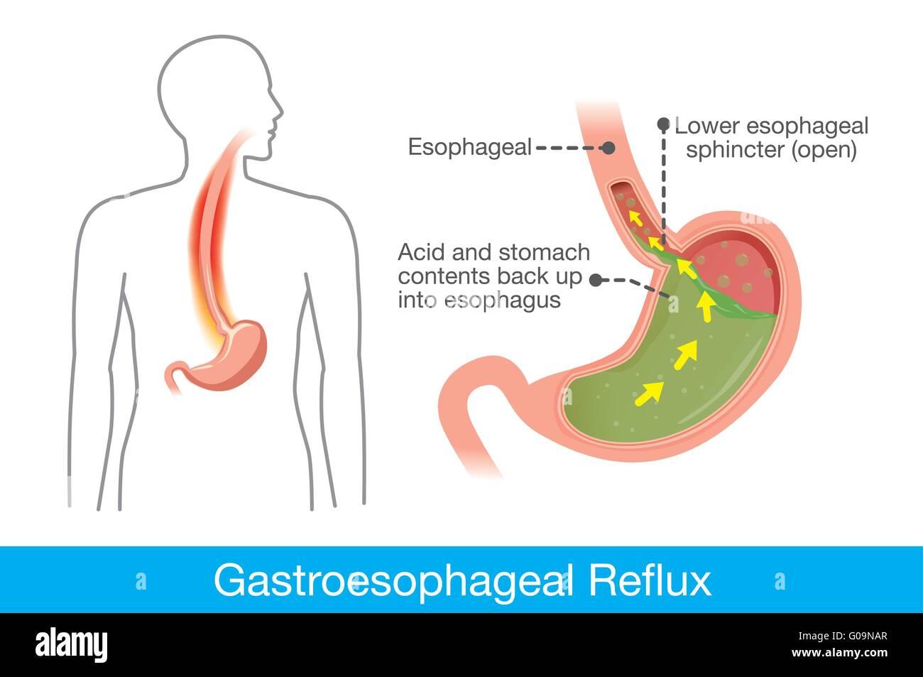 La causa de la enfermedad de reflujo gastroesofágico en el estómago ...