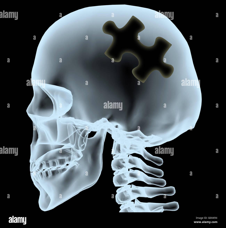 Radiografía de una cabeza con la pieza del rompecabezas en lugar del cerebro, ilustración 3d Imagen De Stock
