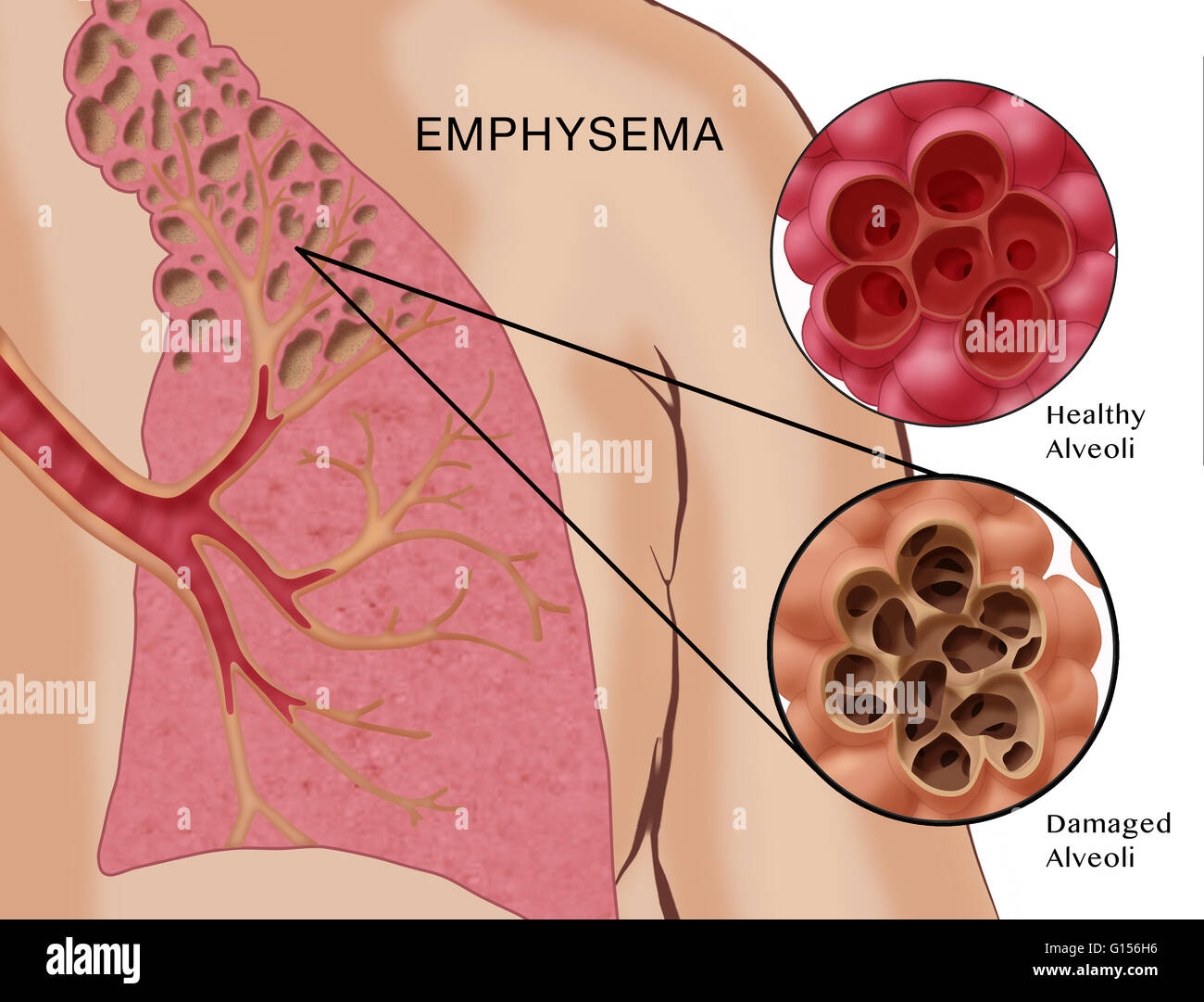 Ilustración mostrando el enfisema, una condición caracterizada por ...