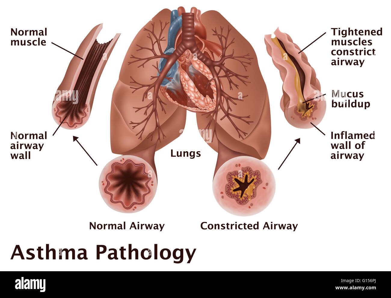 Patología del asma. Una ilustración de los pulmones con una vía ...