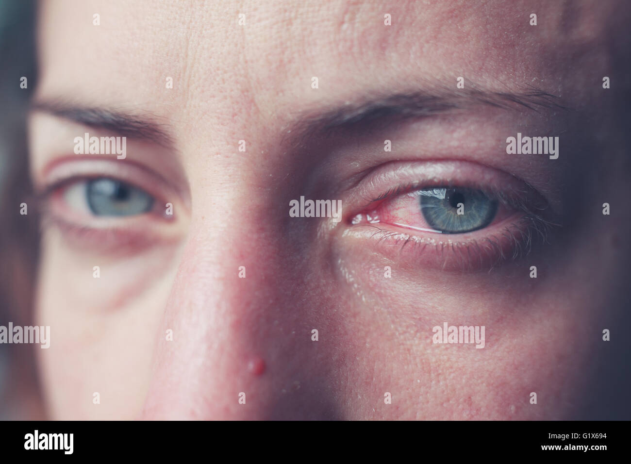Primer Plano De Una Mujer Llorando Los Ojos Inyectados De Sangre