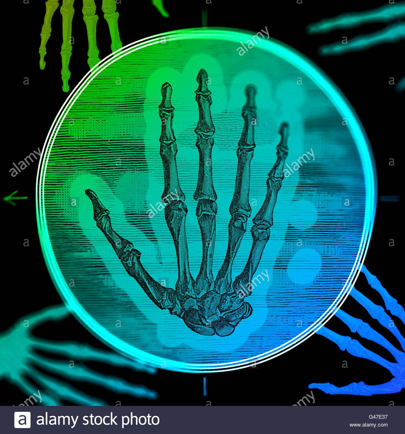 Diagrama médico retro ilustración de manos del esqueleto humano ...