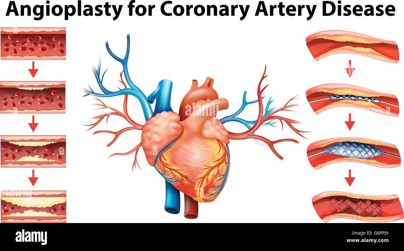Coronary Heart Disease Diagram Imágenes De Stock & Coronary Heart ...