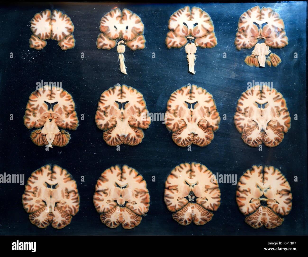 Plastinate, secciones cruzadas a través del cerebro humano, Body Worlds, Menschen Museum, Berlín, Alemania Imagen De Stock