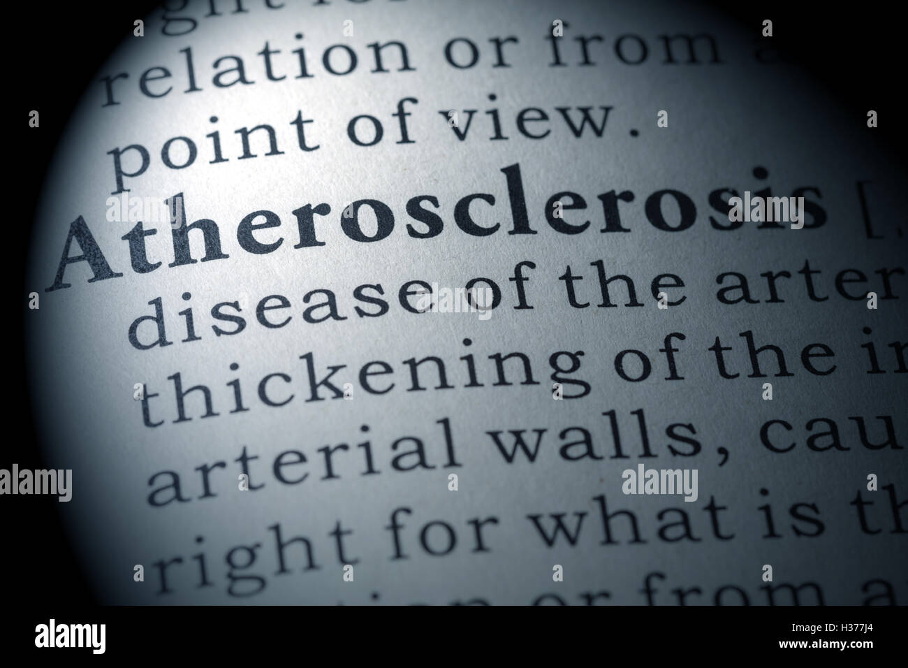 Diccionario de falsos, definición de diccionario de la palabra aterosclerosis. Foto de stock