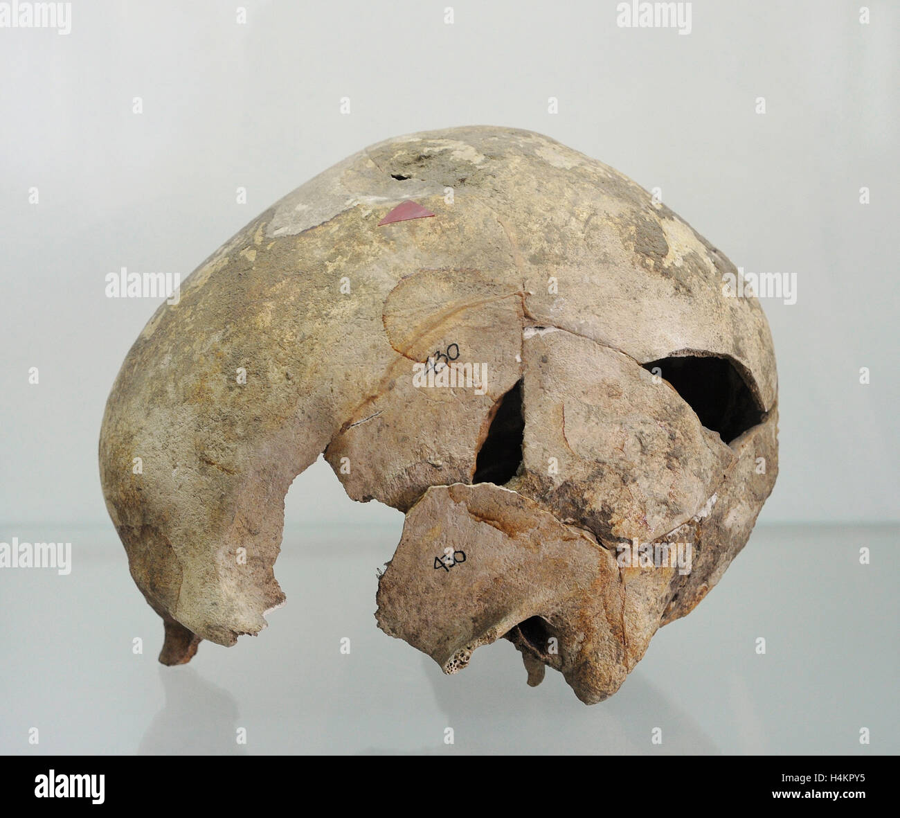 Polonia. En la prehistoria. Cráneo humano con una marcada huella de ...