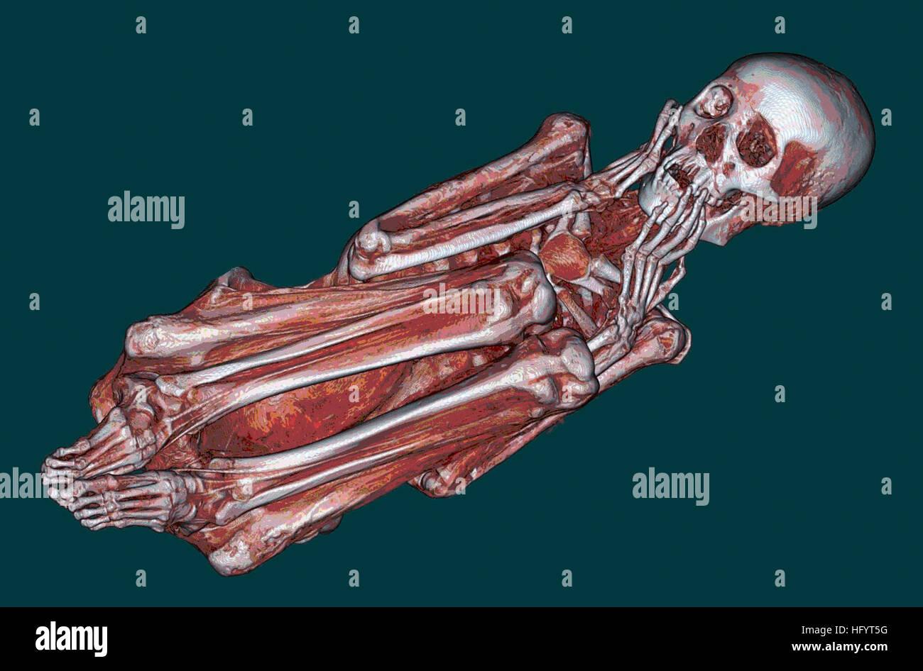 110427-N-YY999-001 SAN DIEGO (27 de abril de 2011) Una tomografía computarizada de una momia peruana adoptada Imagen De Stock
