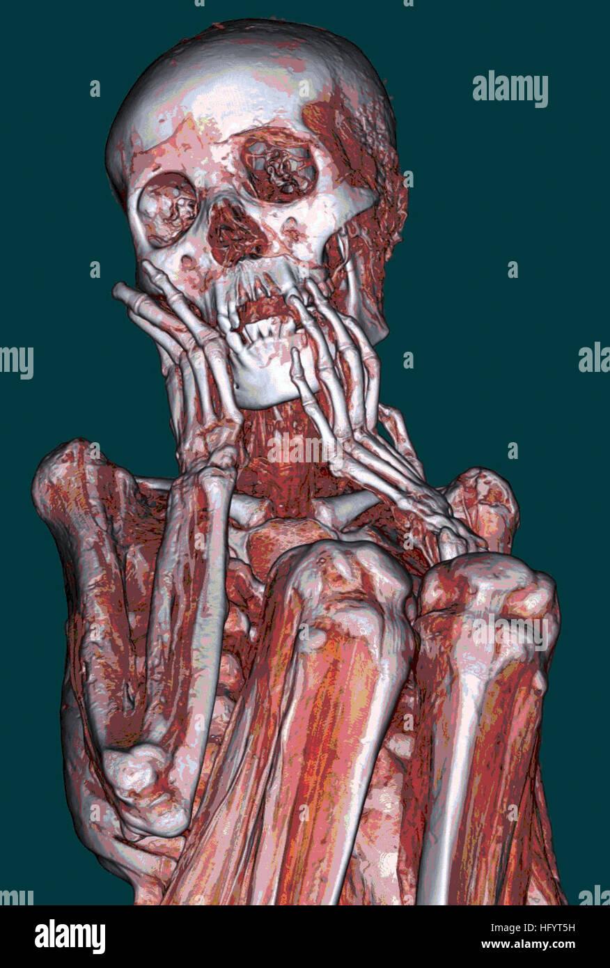 110427-N-YY999-002 SAN DIEGO (27 de abril de 2011) Una tomografía computarizada de una momia peruana adoptada Imagen De Stock