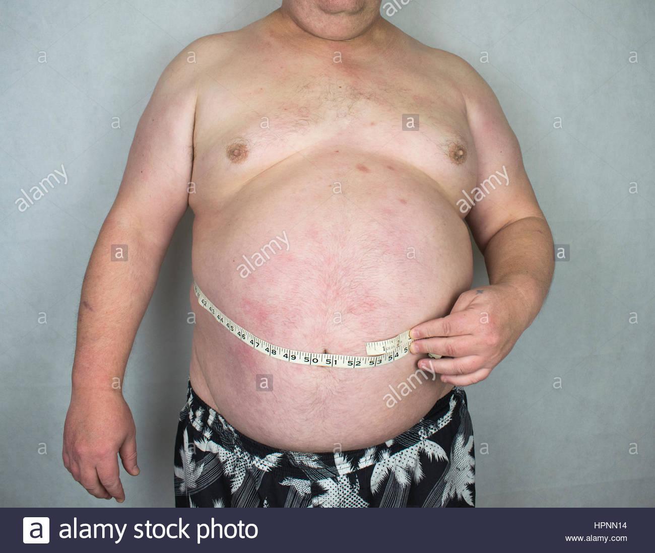 Obesidad - hombre obeso con cinta adhesiva. Imagen De Stock