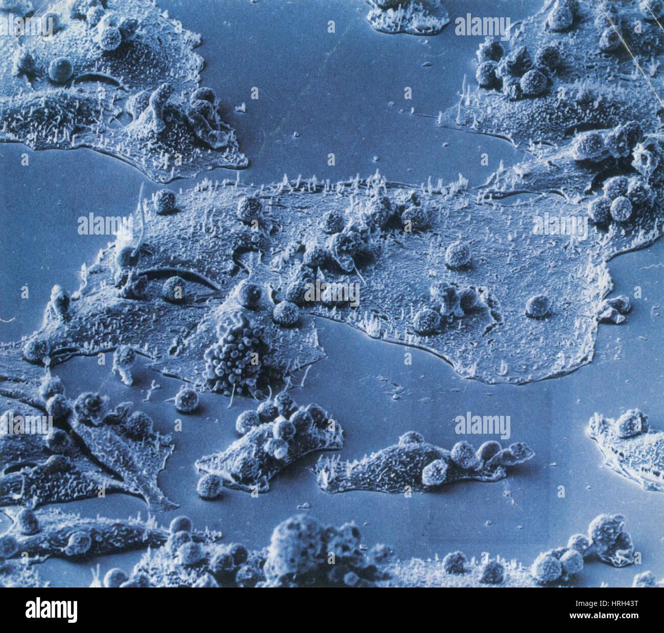 Las células inmunitarias atacan a las células cancerosas, SEM Foto de stock