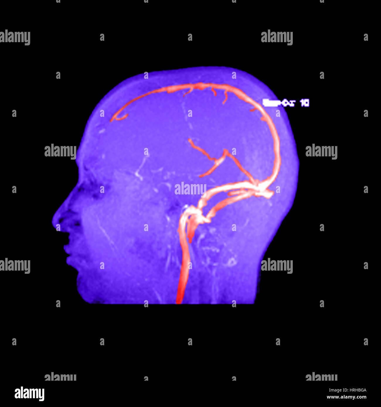 Normal Cerebral Veins Imágenes De Stock & Normal Cerebral Veins ...