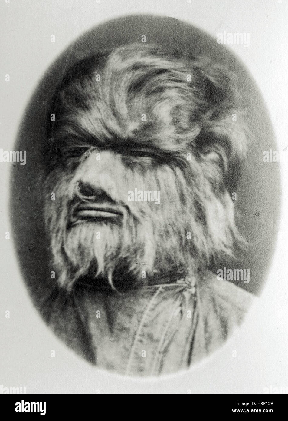 Hipertricosis, del siglo XIX. Imagen De Stock