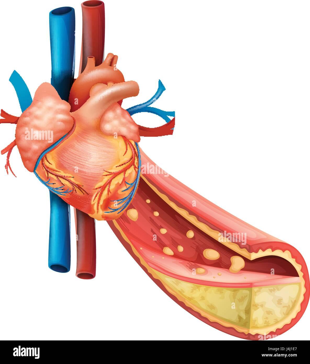 Encantador El Diagrama Corazón Marcado Adorno - Anatomía de Las ...
