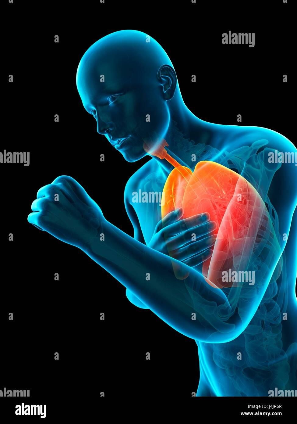 Anatomía de la persona tose, ilustración Foto & Imagen De Stock ...