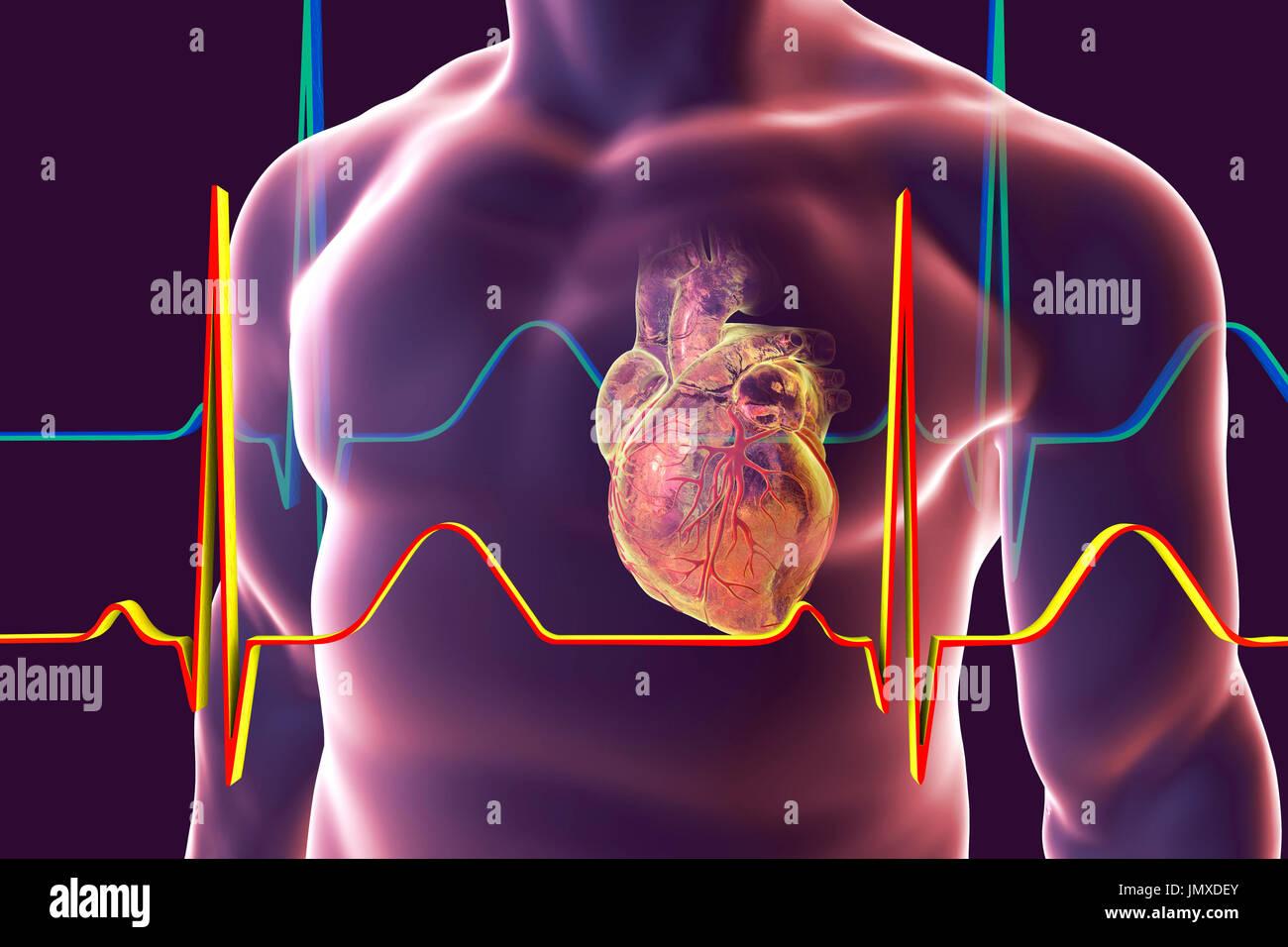 Corazón con vasos coronarios dentro del cuerpo humano, equipo de ...
