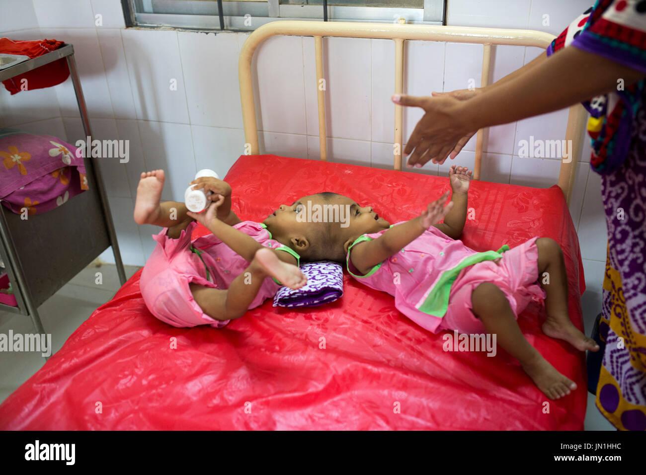 Conjoined Baby Imágenes De Stock & Conjoined Baby Fotos De