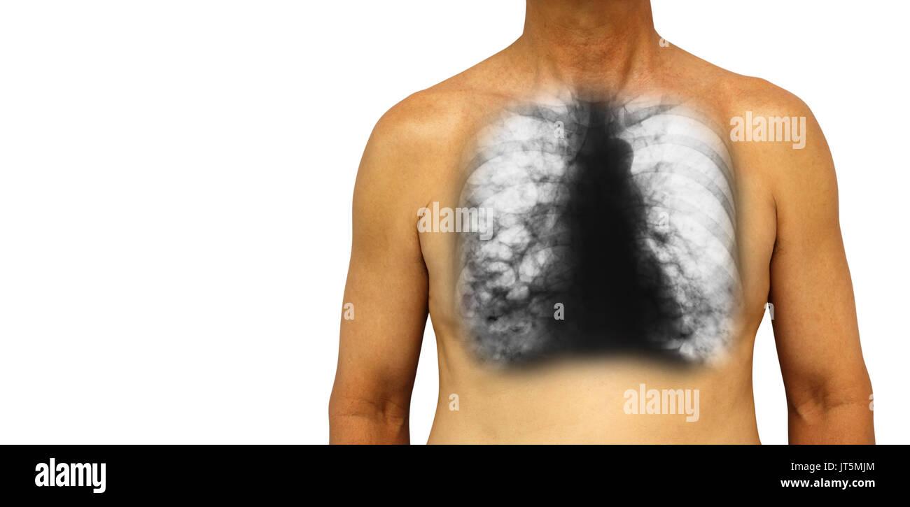 Respiratory System Imágenes De Stock & Respiratory System Fotos De ...