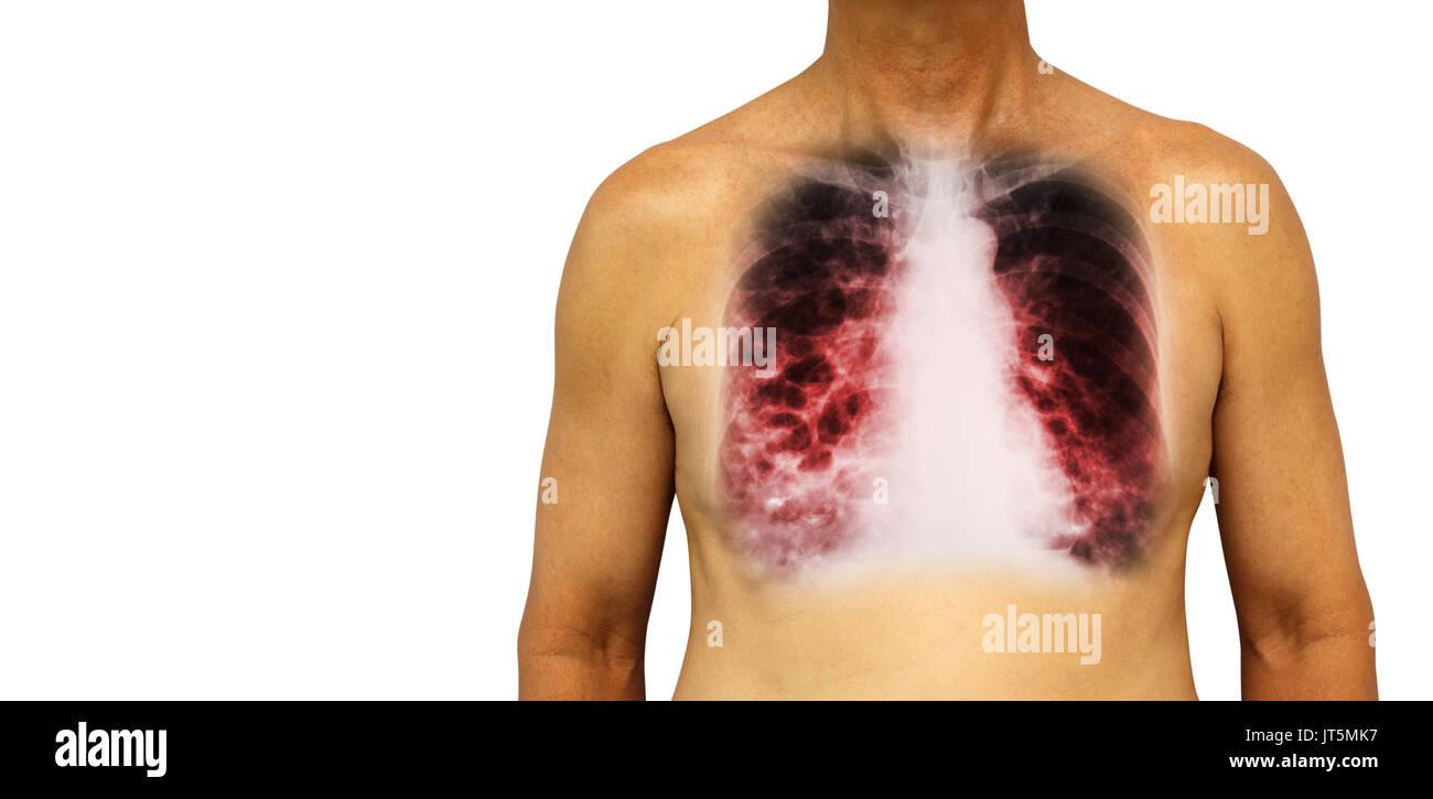 Left Lung Imágenes De Stock & Left Lung Fotos De Stock - Página 2 ...