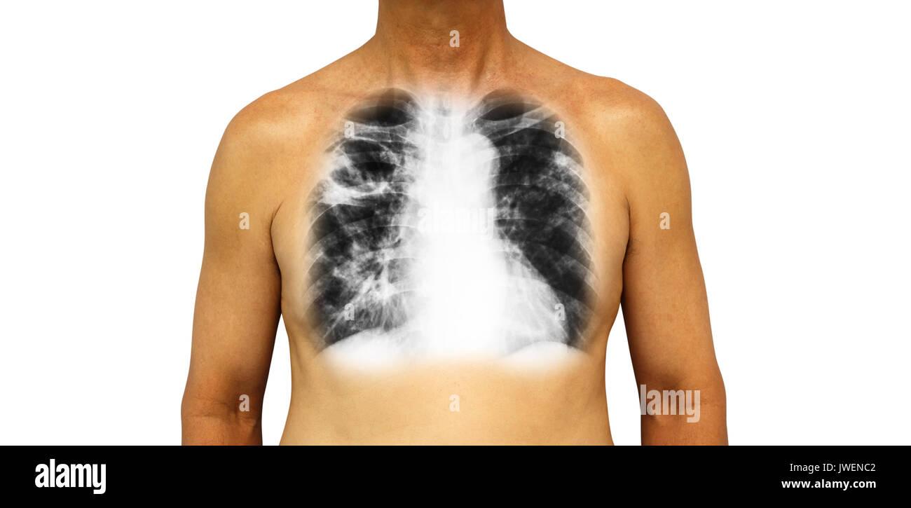 Upper Respiratory Anatomy Imágenes De Stock & Upper Respiratory ...