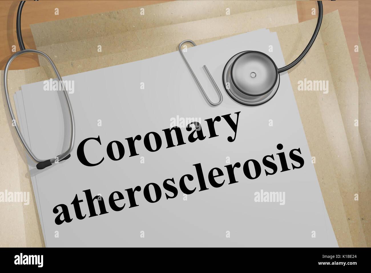 Representar la ilustración de la aterosclerosis coronaria título en documentos médicos Foto de stock