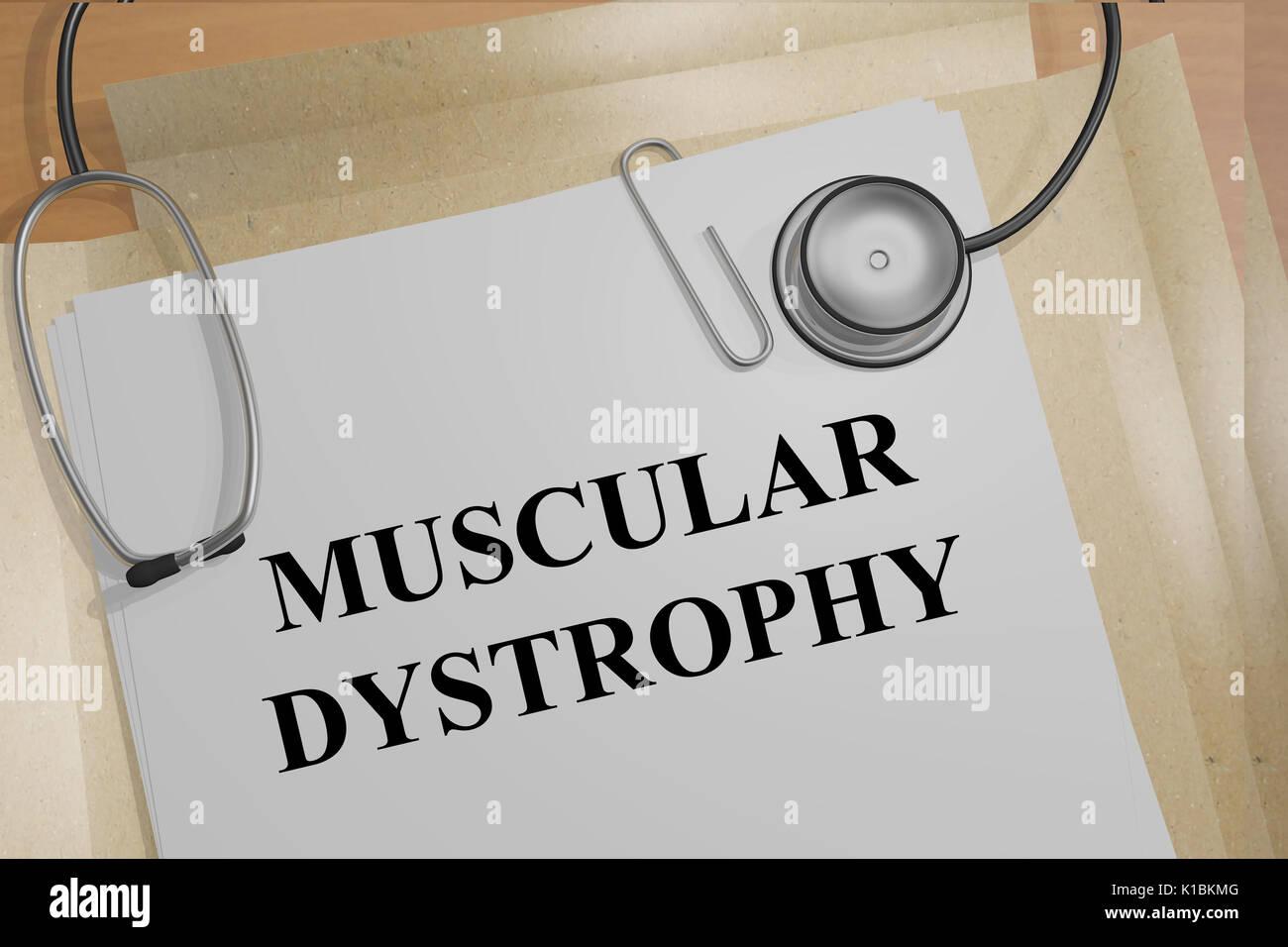 Ilustración de render de Distrofia Muscular título en documentos médicos Imagen De Stock