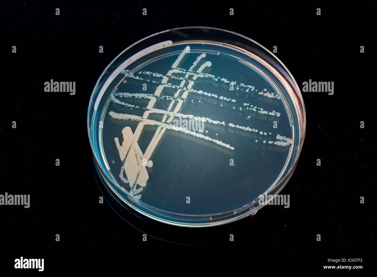 Montón de petri con cultivos de crecimiento de microorganismos en el doctor mano , hongos y microbios. Una placa Petri ( Petrie plato. Placa de Petri o en cultivos celulares Foto de stock