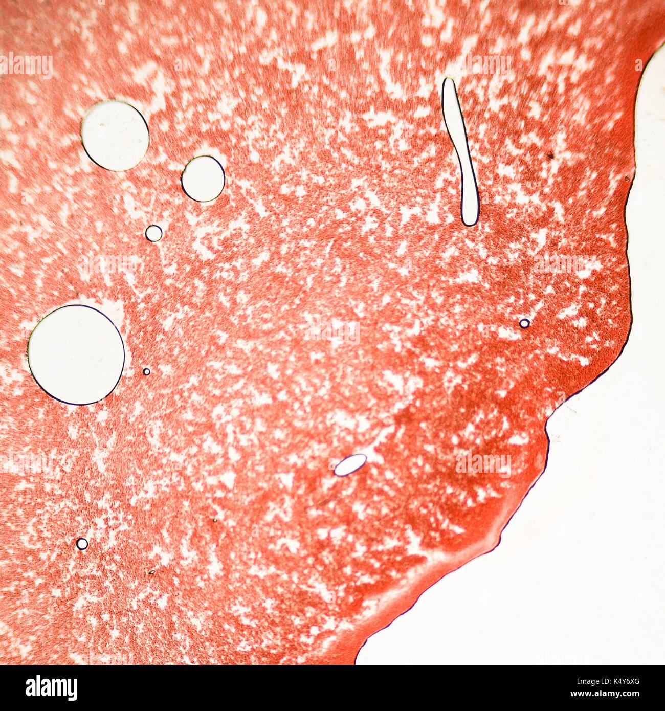 Un frotis de sangre bajo el microscopio presentan los neutrófilos y linfocitos rojos. foto micro secciones con alta magnificación con microscopio de luz Foto de stock