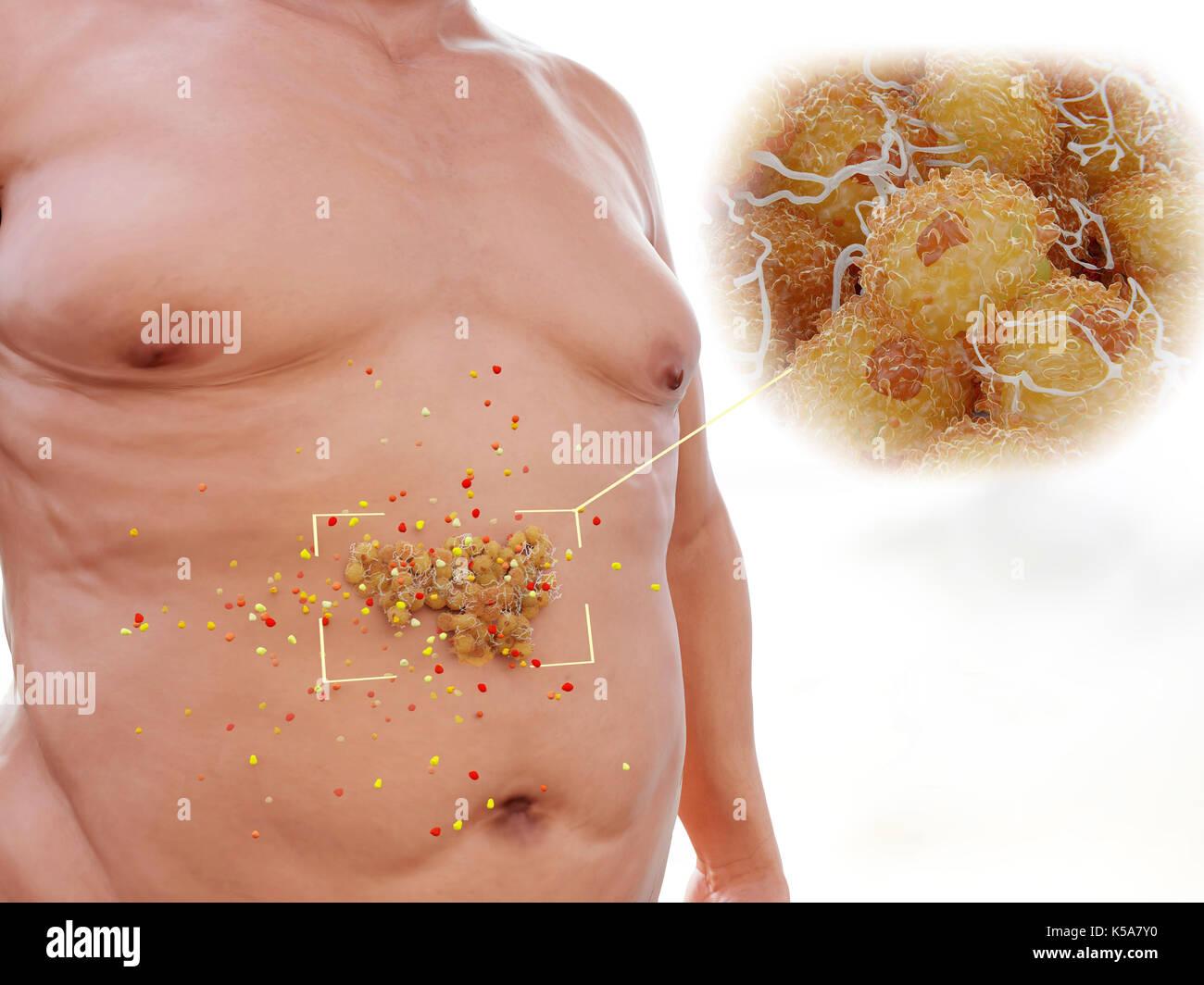 La grasa visceral en el abdomen humano, ilustración. la grasa ...