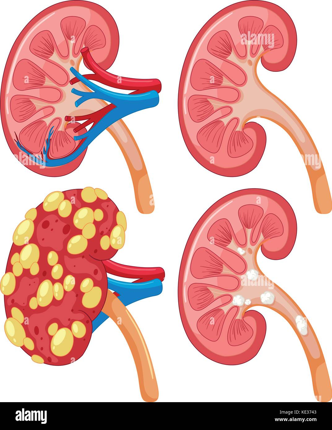 Diagrama de ilustración con enfermedad renal Ilustración del Vector ...